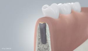 zahnmedizinisches Implantat mit Knochenaugmentation